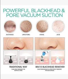 VOYOR Blackhead Remover Vacuum Suction Facial Pore Cleaner Electric Acne Comedone Extractor Kit with 4 Suction Head for Women and Men Black Heads Extraction - TrendyMart - - Remove Blackheads From Nose, Remove Acne, Shrink Pores, How To Exfoliate Skin, Clean Pores, Loose Skin, Skin Elasticity, Shopping, Makeup Tips