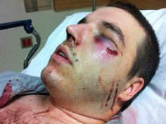 pictures of beaten up faces - Google Search