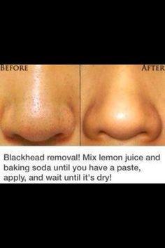 Blackhead removal naturally. Lemon juice baking soda Beauty & Personal Care - skin care face - http://amzn.to/2meuFJD