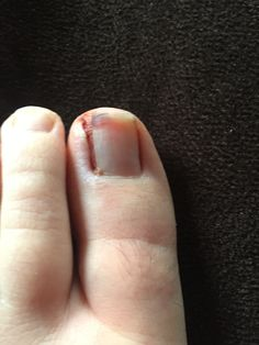 2540ab46dffc8381feb6bd2187cb6d31 - How To Get Rid Of Ingrown Toenails On The Side