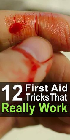 9 Most Important First Aid Skills To Learn There could come a day when modern medicine is no longer so easily accessible. When and if that time comes, you can rely on these first aid tricks. Disaster Preparedness, Survival Prepping, Survival Skills, Survival Hacks, Survival Essentials, Camping Essentials, Camping Hacks, First Aid Tips, Basic First Aid