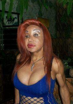 Awful plastic surgery!