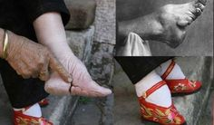 beauty rituals around the world that are painful - foot binding in old China. Harbin, Tradition Of China, Color Menta, Arabic Pattern, 1000 Years, 5 Years, Body Modifications, Women In History, Ancient History