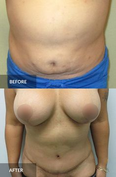 Tummy Tuck: before and after, 6 months post-op  #tummytuck #abdominoplasty #plasticsurgery Tummy Tuck Before After, Tummy Tucks, Abdominal Muscles, Plastic Surgery, 6 Months, How To Remove, Cosmetics, 6 Mo
