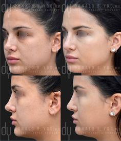 247 Best Rhinoplasty Before And After Images Rhinoplasty Before And After Rhinoplasty Facial Plastic Surgery