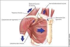 Fracture of the Clavicle: There are many muscles involved in the shoulder complex, but there are 6 muscles that attach directly to the clavicle. These include Pectoralis Major, Upper trapezius (distal end), Anterior deltoid, Sternocleidomastoid (SCM), Subclavius