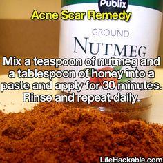 Possible acne scar hack