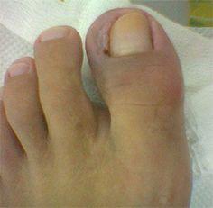 Eingewachsener Nagel - Fußbeschwerden | die-fussexperten.de …