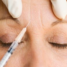 Laser hair elimination is epilation by laser or with using a special light. Besides the body, certain types of laser hair removal may securely be utilized to minimize facial hair also. Facial Fillers, Botox Fillers, Dermal Fillers, Lip Fillers, Plastic Surgery Gone Wrong, Plastic Surgery Photos, Plastic Surgery Procedures, Facial Aesthetics, Eyelid Surgery