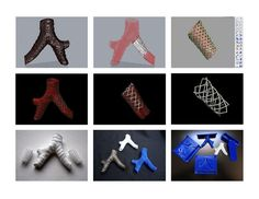 Create a custom 3D printable prosthetic device using data from a CT scanner