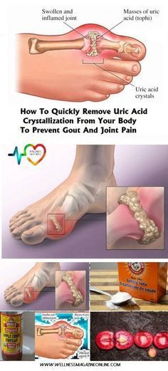 In case you didn't know, gout is a health disorder that appears in people who have malfunctioning metabolism of uric causes which leads to arthritis in the tiny bones located in their feet.