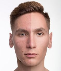 A fresher look with Botox for men. Bucktown Dental Associates offers facial rejuvenation for men in Chicago, including Botox to treat face wrinkles and Bruxism. Facial Esthetics, Facial Rejuvenation, Face Wrinkles, Dermal Fillers, Dental, Chicago, Men, Guys