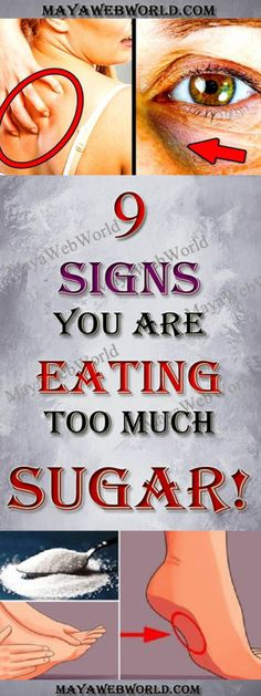 These 9 Signs You Are Eating Too Much Sugar! – MayaWebWorld