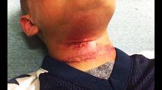 White Teens Lynch Biracial Eight-Year-Old Boy--