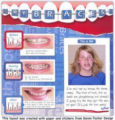 Braces scrapbook page
