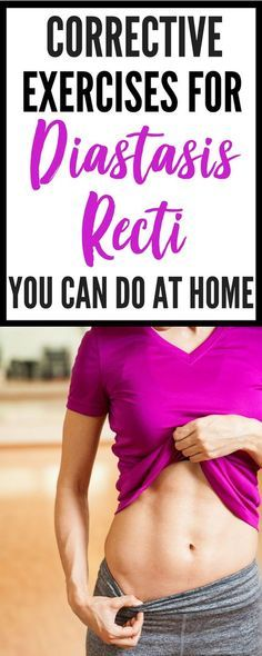 Abs Corrective Exercises For Diastasis Recti You Can Do At Home - learn how to heal diastasis recti or abdominal separation after pregnancy from home. - Corrective Exercises For Diastasis Recti You Can Do At Home Exercices Diastasis Recti, Healing Diastasis Recti, Workout For Diastasis Recti, Diastasis Recti Repair, Diástase Abdominal, Abdominal Exercises, Core Exercises, Belly Exercises, Abdominal Workout