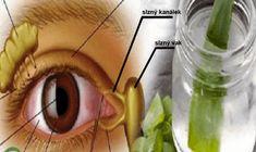 Známý ruský doktor Vladimír Petrovič Filatov, oftalmolog a chirurg, je velkým zastáncem jednoho superzdravého léku pro oči, který vám dnes blíže představíme. Tvrdí, že s tímto čistě přírodním receptem vyléčil již mnoho pacientů. Uvedený lék dokáže nejen zlepšit ostrost zraku, ale i snížit nitrooční tlak, který může být příčinou pozdějších nevratných degenerativních změn očí. Recept na …