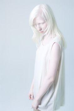 Albino by Anna Danilova