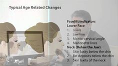 Part 6/13: Typical Age Related Changes of the Face | Face & Neck Rejuven...