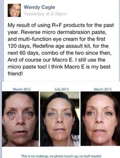 #rfskintervention #skin care #beautifulskin Rodan + Fields Dermatologists www.asavage.myrandf.com