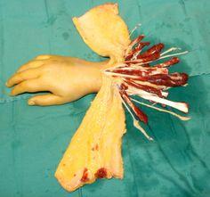 hand transplant