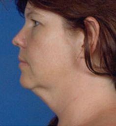 #facelift before: side profile