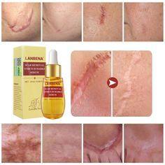 Acne Skin Care – Acne skin care tips Best Acne Scar Removal, Acne Scar Removal Treatment, Stretch Mark Removal, Stretch Marks, Acne Skin, Acne Scars, Serum, Shrink Pores, Skin Care Cream