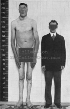 The Man Who was a Dwarf and Later a Giant (Acromegaly)
