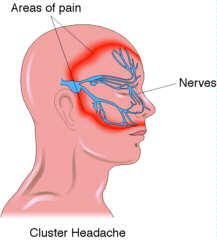 Cluster Headache information https://www.facebook.com/TheClosetCluster