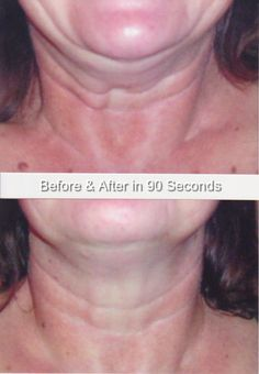 90 second face lift with Ageless Science from Aloette! Hostess special for January Neck Exercises, Neck Lift, Two Faces, Holiday Wishes, Love My Job, Aloe, Hair Makeup, Medical, Science