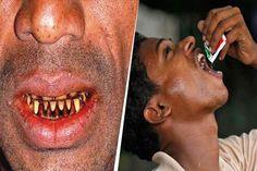गुटखे से गंदे हुए दांतो से छुटकारा पाने के लिए अपनाये यह घरेलु नुस्खे | Punjab Kesari