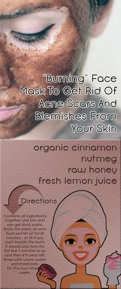 get rid of acne scars, benefits of burning face mask, uneven skin tone, makeup, baking soda, before and after mask, without nutmeg, beauty tips #acnemaskdiy