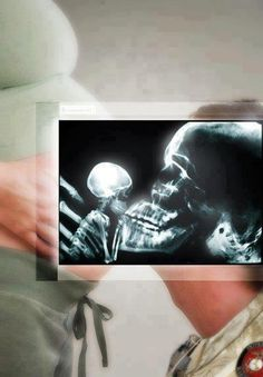X Ray of a unborn baby being kissed