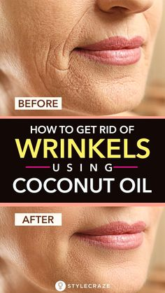 How To Get Rid Of Wrinkles Using Coconut Oil: Are you constantly worried about the signs of aging on your face? Do you think wrinkles and dark spots are ruining your beauty? If yes, you have to start including coconut oil in your skin care routin Beauty Tips For Face, Natural Beauty Tips, Natural Skin Care, Beauty Advice, Face Tips, Beauty Ideas, Beauty Secrets, Beauty Guide, Skin Secrets