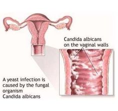 Yeast Infections Causes & Symptoms - KEEPHEALTHYALWAYS.COM - Reliable Health Advice and Remedies