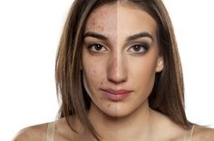 Peeling Facial Clareador