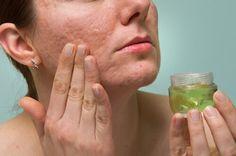 Aloe vera is an alternative to jojoba oil for acne Aloe Vera Cara, Aloe Vera Creme, Acne Scar Removal Treatment, Back Acne Treatment, Lotion Tonique, Aloe Vera Skin Care, Pigmentation, Acne Facial, How To Get Rid Of Acne