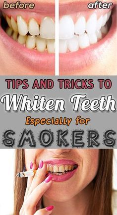 Tips and Tricks to Whiten Teeth Especially For Smokers