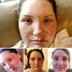 """Laura Johnson said that 8 years ago she burned herself in a grease fire. Anything she tried on her skin made it burn. She felt frustrated thinking she would have to live live with horrible skin. She decided to give R+F Soothe a try and here are her results today! She said """"For the first time in 8 years, I can actually use skin care! I'm on soothe right now and the first time I used it, I was in shock! Couldn't believe I wasn't having any side affects! Thanks R&F!"""" indra.arman@gmail.com"""