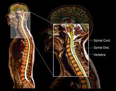 """Cervical radiculopathy is a disease process marked by nerve compression, typically from herniated disc material or arthritic bone spurs in the neck. Symptoms typically include pain, weakness, or numbness in the areas served by the affected nerve. Pain can be felt in one area only, like the shoulder, or progress along the entire arm and into the hand and fingers - in the same way that knocking your """"funny bone"""" causes symptoms at the site, and further along the length of the ulnar nerve."""