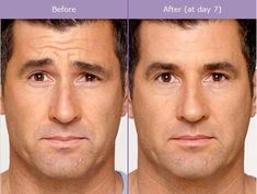 Botox is not only for women. Men want to look just as good! BOTOX® is the only FDA-approved product that temporarily improves both moderate to severe crow's feet AND frown lines between the brows in adults. Botox Fillers, Dermal Fillers, Botox Lips, Botox Cosmetic, Blusher Tips, Mens Facial, Massage Treatment, Botox Injections