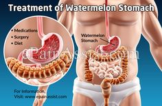 Treatment of Watermelon Stomach or Gastric Antral Vascular Ectasia (GAVE) Gastrointestinal Bleeding, Iron Deficiency Anemia, Abdominal Pain, Medical, Diet, Medicine, Med School, Banting