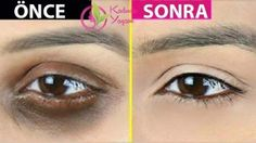 Dark Circles Around the Eye with This Coffee Serum in 7 Nights .- 7 Gecede Bu Kahve Serumu ile Göz Çevresindeki Koyu Çemberler Sonsuza Kadar Ka… 7 Dark Circles Around The Eye Will Disappear With This Coffee Serum Over Night! Dark Circles Treatment, Back Acne Treatment, Types Of Acne, Chemical Peel, Bright Skin, Puffy Eyes, Face Serum, Good Skin, Massage