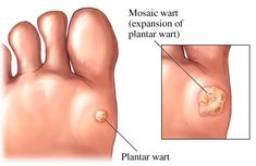 Medical Treatment for Plantar Warts - Delray Beach Podiatry Home Remedies For Warts, Warts Remedy, Toenail Fungus Remedies, Herbal Remedies, Health Remedies, Natural Remedies, Types Of Warts, Wart On Finger, Warts On Face