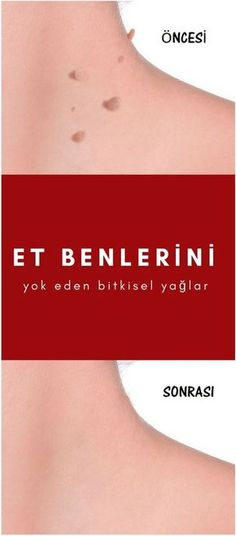 Vegetable Oils That Destroy Meat Moles- Et Benlerini Yok Eden Bitkisel Yağlar Meat for me - Massage Tips, Massage Benefits, Health And Beauty, Health And Wellness, Health Fitness, Herbal Remedies, Natural Remedies, Diy Shampoo, Homemade Skin Care