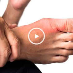Arthritis gout treatment gout foods to avoid list,gout of foot gout symptoms foot pain,gout treatment foods how to treat the gout. Natural Remedies For Gout, Gout Remedies, Holistic Remedies, Home Remedies For Gout, Herbal Remedies, Natural Treatments, Vicks Vaporub, Dry Nose Inside, Health Tips