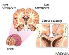 Corpus callosum of the brain: MedlinePlus Medical Encyclopedia Image Embodied Cognition, Corpus Callosum, Brain Based Learning, Gross Motor Activities, Physical Activities, Education Information, Neuroplasticity, Brain Gym, Traumatic Brain Injury