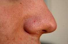 Blackheads are clogged pores on the face and nose that are caused due to oily skin. It occur when skin pores become clogged with excess sebum oil, dirt and dead skin cells. Homemade Beauty, Diy Beauty, Beauty Skin, Beauty Makeup, Beauty Hacks, Beauty Bar, Get Rid Of Blackheads, Homemade Cosmetics, Hair Beauty