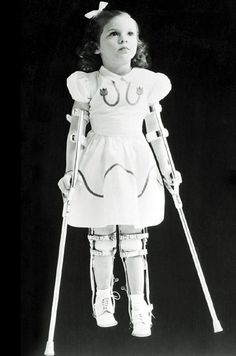 Little girl with leg braces for polio.  Polio used to put fear in our hearts until Salk invented a vaccine.