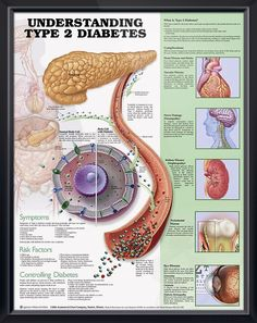 About diabetes and dysphagia on pinterest blood sugar diabetes